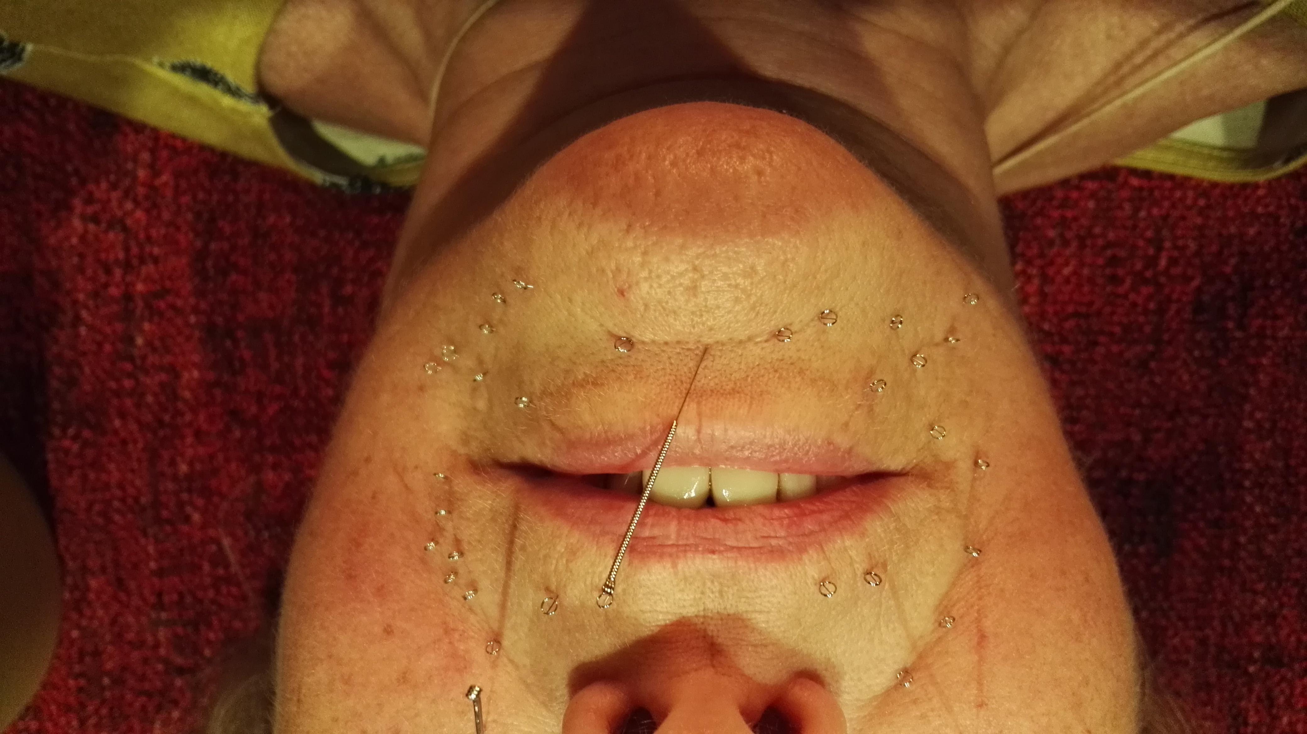 Acupunctuur gebruikt het Chinese geneeskundige biolgie model