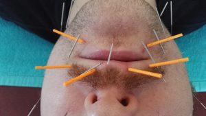 lipbehandeling