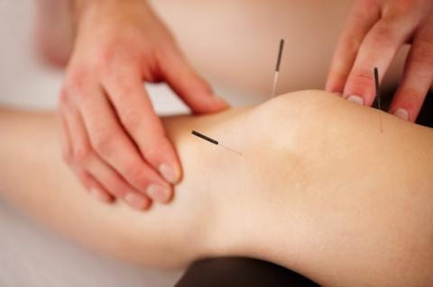 Acupunctuur Amsterdam knie acupunctuur
